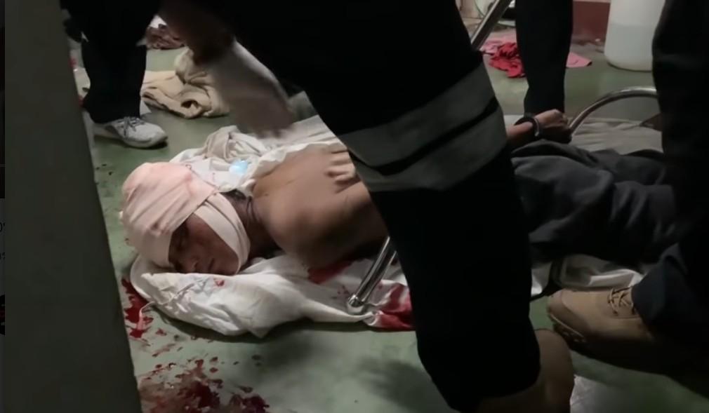 หาดใหญ่เกิดเหตุชายหนุ่มป่วยทางจิตเสพยาคุ้มคลั่งบุกบ้านญาติใช้มีดจี้คอเด็กชายอายุ 13 ปี