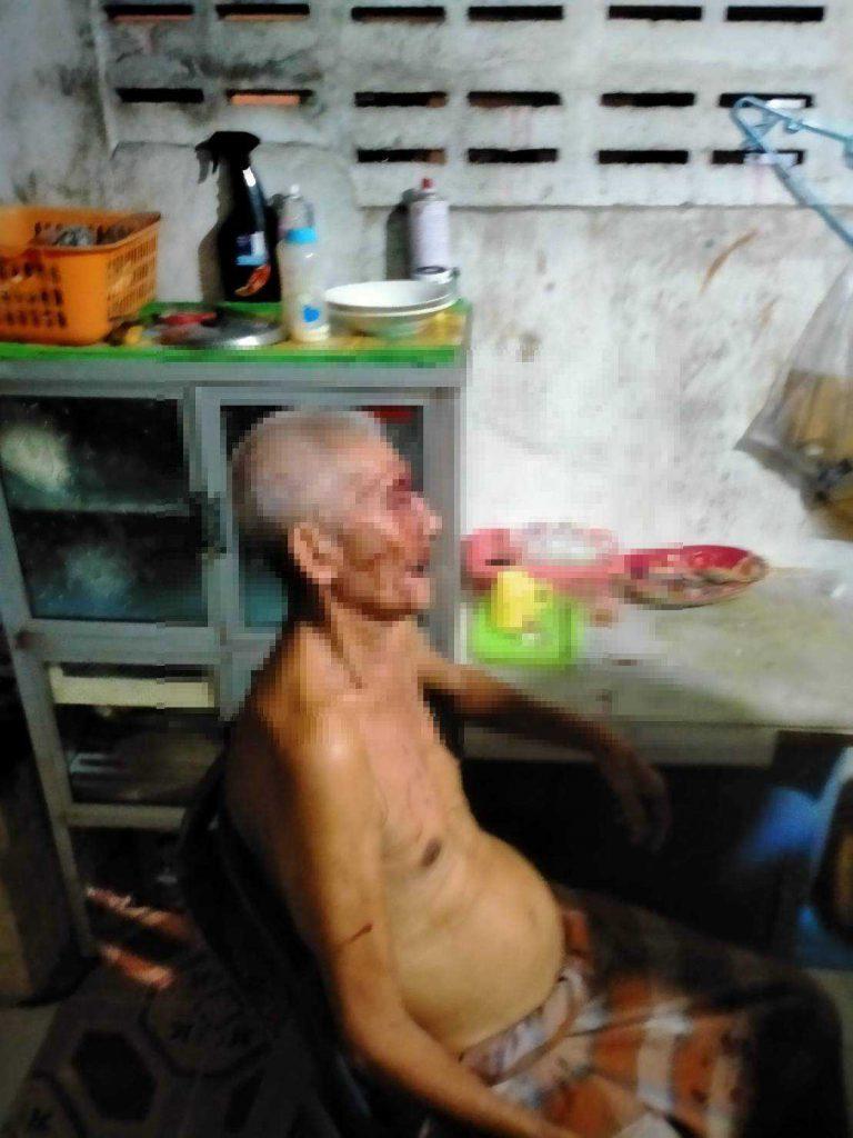 ลูกทรพี ! ทำร้ายพ่อแท้ๆแล้วหลบหนี จนท.ได้แจ้งความและเร่งปฐมพยาบาลก่อนนำส่งรพ.สงขลา